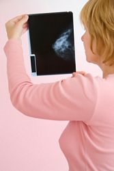 doctor looking at mammogram x-ray image